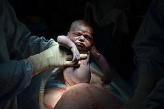 cesarean section cc loulou-nico