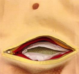 up close cesarean apron